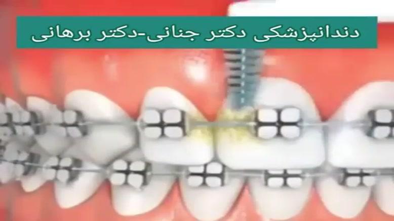 بهداشت دهان و دندان طی درمان های ارتودنسی