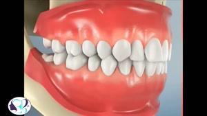 فیلم کامل کشیدن دندان عقل