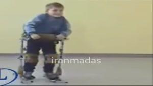 کودکان فلج اطفال هم میتوانند راه بروند!