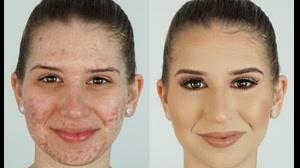 فیلم آموزش ترفندهای آرایش برای صورت جوش و آکنه دار