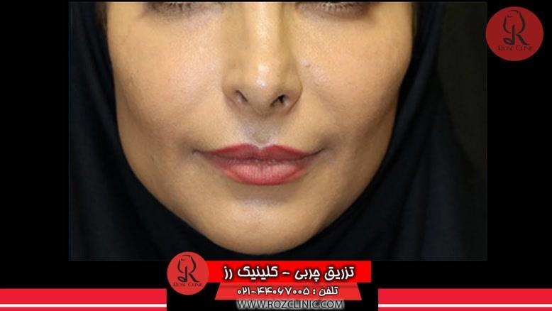تزریق چربی | فیلم تزریق چربی | کلینیک پوست و مو رز | شماره 56
