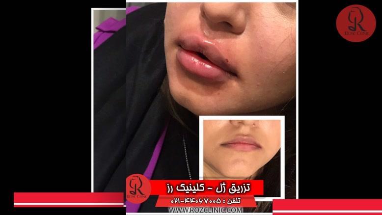 تزریق ژل | فیلم تزریق ژل | کلینیک پوست و مو رز | شماره 41