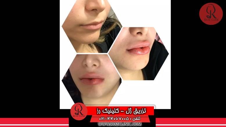 تزریق ژل | فیلم تزریق ژل | کلینیک پوست و مو رز | شماره 42