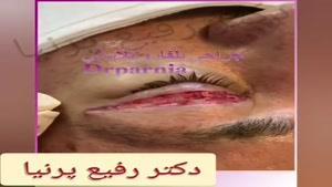 فیلم بلفاروپلاستی یا جراحی پلک