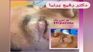 جراحی پلک توسط دکتر رفیع پرنیا
