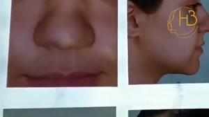 نمونه کار جراحی بینی دکتر هیربد بهنام