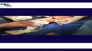 درمان دررفتگی مکرر کشکک زانو
