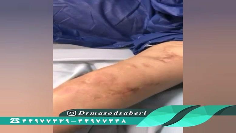 فیلم جراحی خشکی مفصل زانو