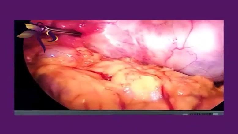 جراحی لاپاراسکوپی کیست درمویید