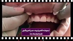 نمونه لمینت سرامیکی توسط دکتر ندا هادی