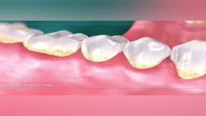 فیلم تمیزکاری عمیق و جرم گیری سطح ریشه دندان