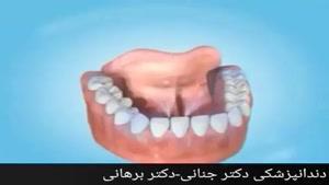 خشکی دهان