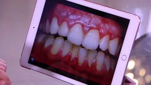 نماشا - پوسیدگی دندان در دوران بارداری