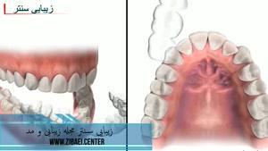 ارتودنسی نامرئی دندان,اصلاح فرم دندان در دندانپزشکی,زیبایی سنتر
