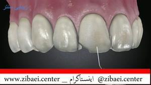کامپوزیت دندان,پر کردن دندان یا روکش دندان,داندان پزشکی در زیبایی سنتر