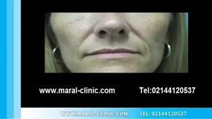 تزریق چربی | فیلم تزریق چربی | کلینیک پوست و مو مارال | شماره ۵