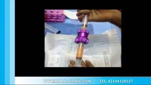 تزریق چربی | فیلم تزریق چربی | کلینیک پوست و مو مارال | شماره ۴