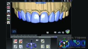 تفاوت لمینیت و کامپوزیت|کلینیک دندانپزشکی مدرن
