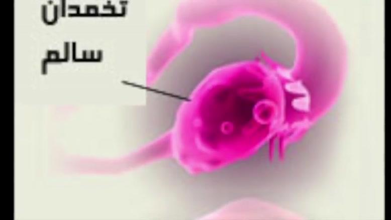 تنبلی تخمدان یا سندرم تخمدان پلی کیستیک