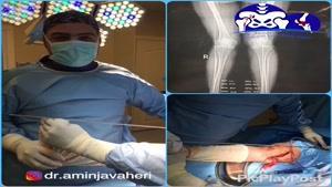 فیلم جراحی اصلاح زانوی ضربدری (عمل استئوتومی زانو)