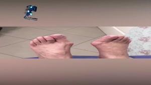 اهمیت اصلاح دفورمیتی انگشتان پا در افراد دیابتی