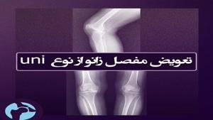تعویض مفصل زانو از نوع یونی - دکتر کاوه قرنی زاده متخصص ارتوپدی