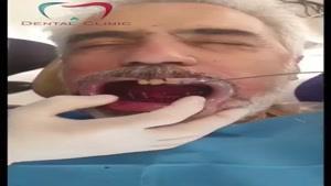 نصب همزمان ۸ ایمپلنت دندان
