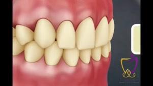 فیلم بلیچینگ دندان