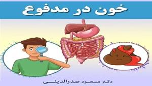 علل خون در مدفوع