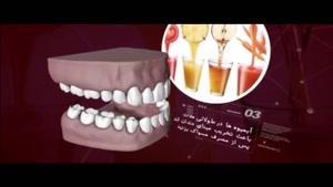 بهترین و بدترین غذاها برای دندانها