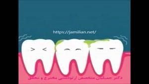 علتهای زردی دندانها
