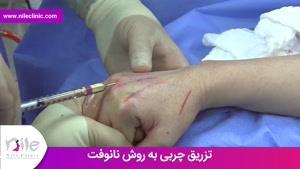 تزریق چربی   فیلم تزریق چربی   کلینیک پوست و مو نیل   شماره 14