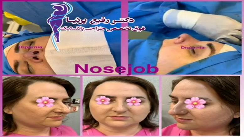 فیلم جراحی بینی توسط دکتر رفیع پرنیا