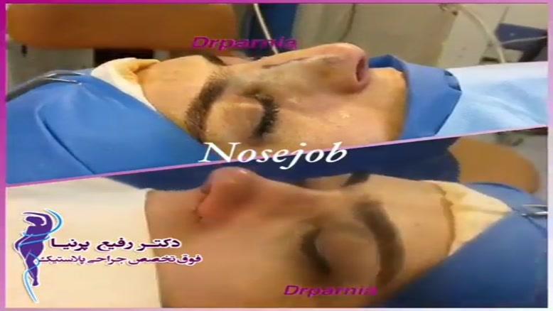 فیلم عمل بینی استخوانی
