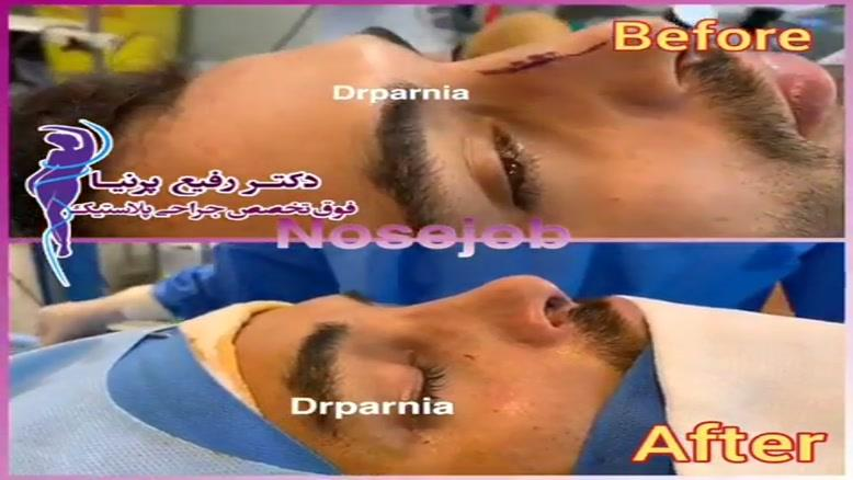 فیلم جراحی بینی
