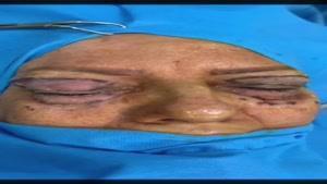 جراحی پلک در خانم ۶۷ ساله