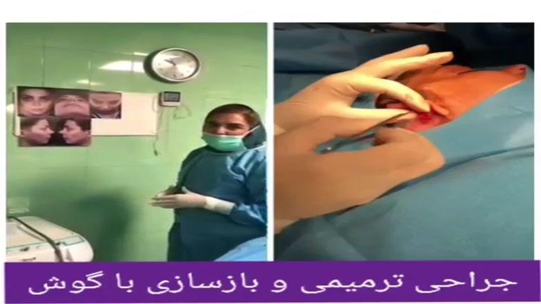 جراحی بینی با پیوند غضروف