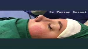 جراحی بینی با روش بسته