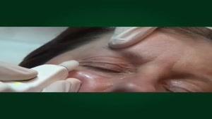 جراحی پلک با پلکسر