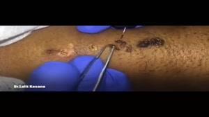 درمان قطعی زگیلهای پوستی و زگیلهای تناسلی با پلاسما جت