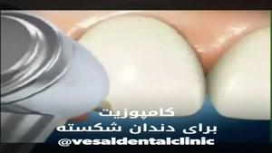 فیلم کامپوزیت دندان شکسته