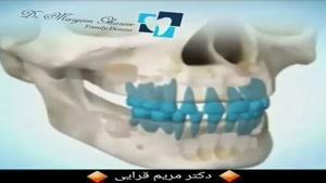 مراحل رشد دندان