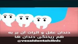 تاثیرات منفی دندان عقل