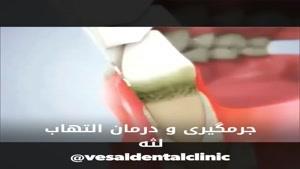 فیلم جرمگیری دندان ها
