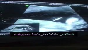 سونوگرافی جنین در هفته 19 بارداری