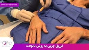 تزریق چربی | فیلم تزریق چربی | کلینیک پوست و مو نیل | شماره 24