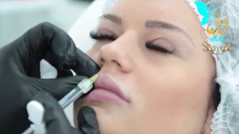 تزریق ژل   فیلم تزریق ژل   کلینیک پوست و مو مارال   شماره 15