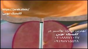 بهترین راههای درمان فوری و قطعی درد بواسیر در کلینیک نوین
