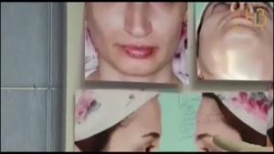 فیلم جراحی بینی (خلاص شدن از عیوب ظاهری بینی)