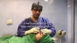 نمونه جراحی بینی آقا